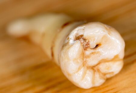A tooth torn by a doctor in dentistry