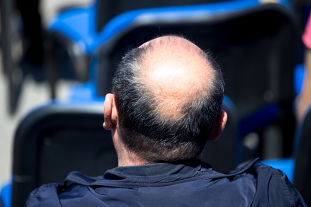 Big bald patch on a mans head . Stock Photo