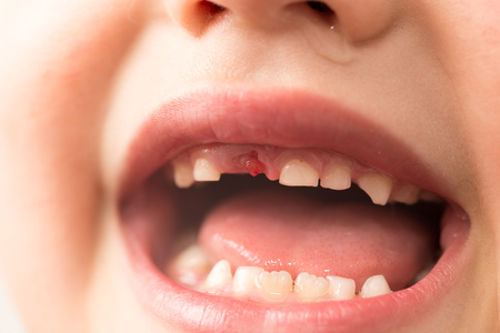 The mouth of a boy without a tooth .