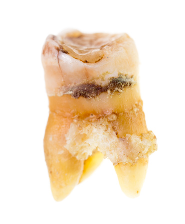 Old torn tooth on a white background .