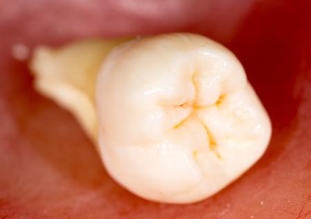 tooth torn. macro