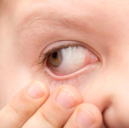 The boy shows an open eye. Macro Stock Photo