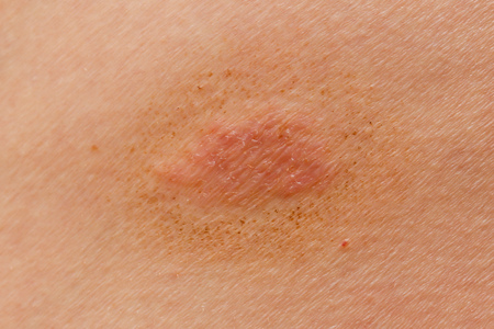 Ringworm on the skin of a person. Macro