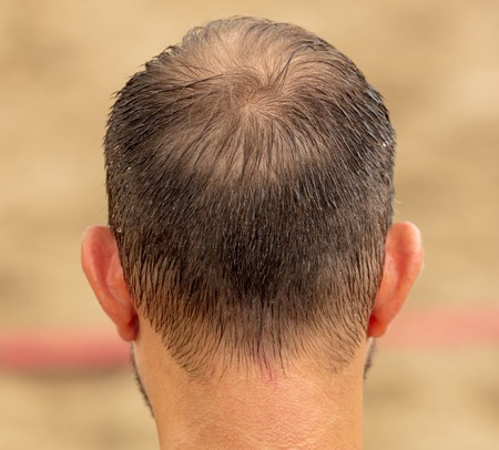 Hair on the man's head in sweat .