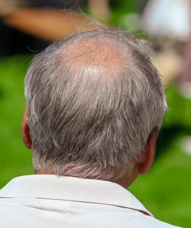 Hair loss on the head of a man . Stock Photo