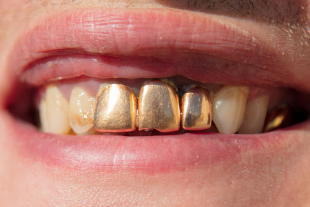 Golden teeth in the mouth of a man. Macro 版權商用圖片