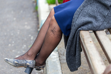Legs of a girl in torn pantyhose sitting on a bench .
