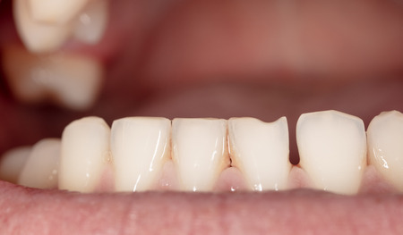 Curved teeth in a mans mouth. Macro