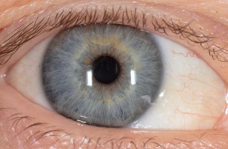 Blaues Auge im Gesicht des Mannes. Makro.