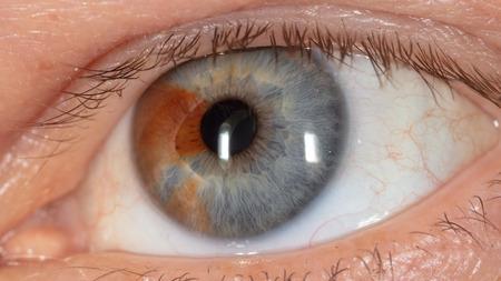 Birthmark on the eye. Macro.