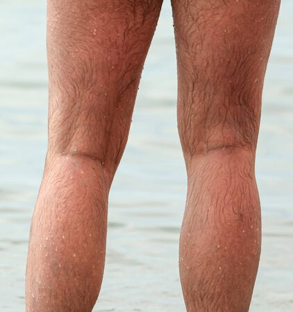 Hairy legs of a man in drops of water on the beach. Beach holiday