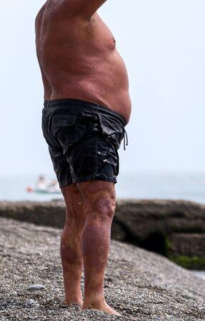 A fat man burned in the sun. Relax on the sea beach Foto de archivo