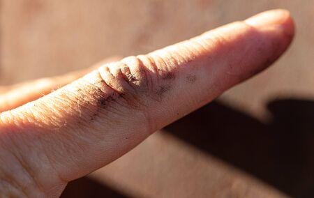 Dirt on the finger. Macro