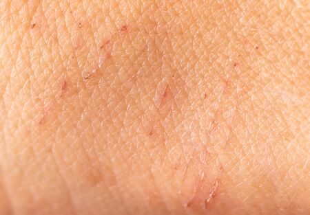 A wound on the skin of a person as a background. Macro Stock Photo