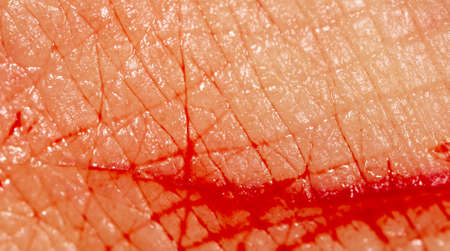 Close-up of blood from a wound on a human skin. Macro 스톡 콘텐츠