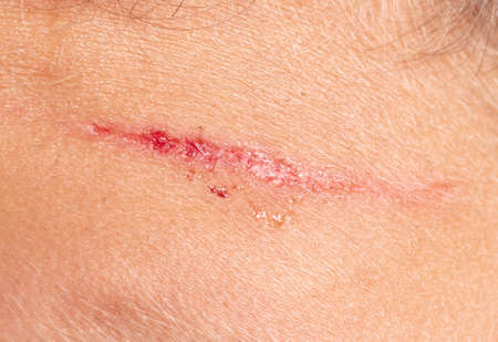Close-up of a wound on the skin. Macro