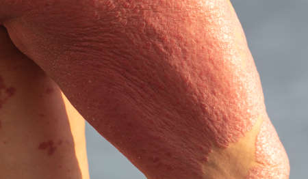 red spots on the legs of a person. Illness.