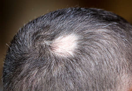 A receding hairline on a man's head. Hairstyle Stock Photo