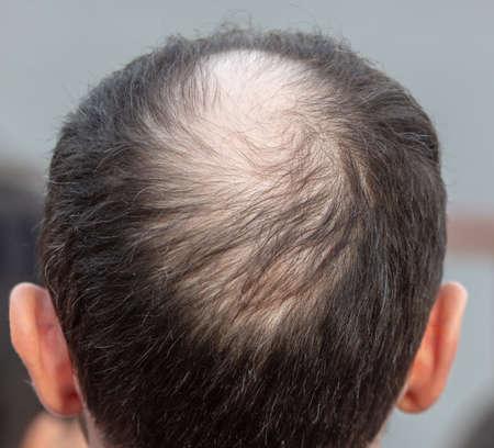 Close-up of a bald spot on a man's head. Disease