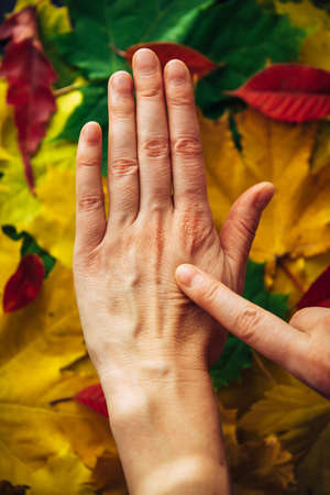 Female hands with fading skin close-up on blurry background of autumn foliage. Dry skin needs to hydrated and nourished. Concept of adulthood, menopause, and reduced collagen production.