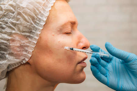 Female patient getting hyaluronic acid injection, side view, close up. Acne treatment on woman face, plasma-lifting, mesotherapy, botulinum therapy. PRP Cosmetics Injecting. Anti-aging concept. 免版税图像