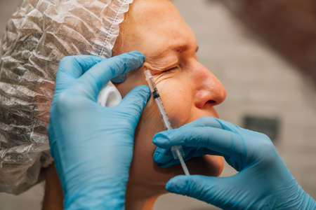 Middle-aged woman with crow's feet wrinkles around her eyes undergoing rejuvenation procedure using hyaluronic acid filler injections. Cosmetologist injects botulinum toxin for smooth face skin. 版權商用圖片