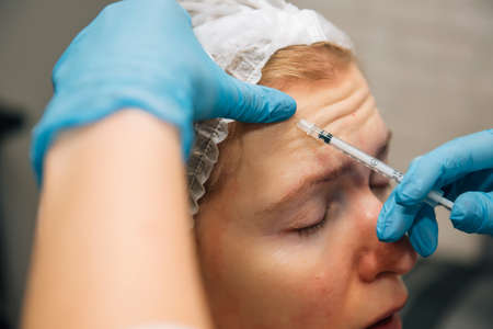 Injection of hyaluronic acid filler under the skin on face of forty years woman, closeup. Botulinum therapy in cosmetology. Doctor makes rejuvenating facial injections for smoothing forehead wrinkles. 版權商用圖片