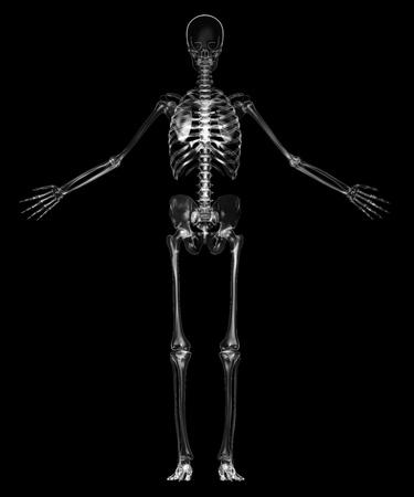x ray image: Human skeleton Stock Photo