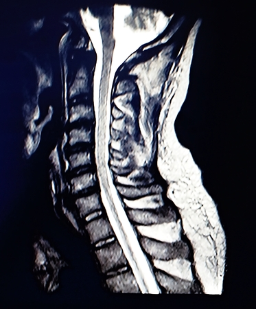 Magnetic resonance scan of the cervical spine. Stock Photo