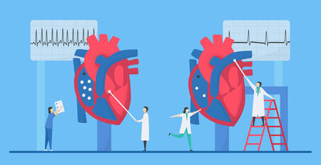 Cardiology illustration. This heart disease problem is tachycardia arrhythmia. Comparison of unusual and normal signals from left to right respectively. Tiny flat design.