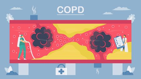 Chronic obstructive pulmonary disease or COPD. Lung have breathing problems and poor airflow. To clean alveoli in blood vessel. Vector illustration in flat design. Çizim