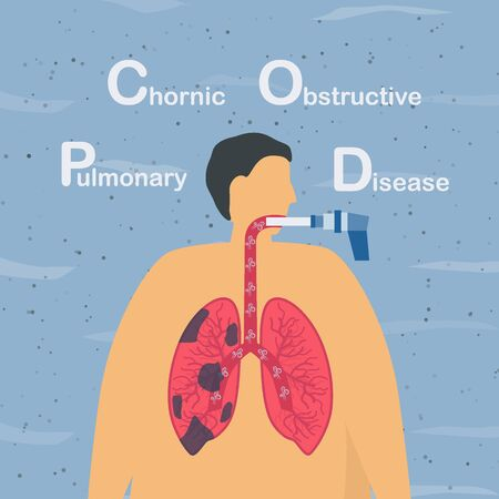Spirometry is a test used to measure lung function. Chronic obstructive pulmonary disease causes breathing problems and poor airflow. Pulmonology vector illustration. Çizim