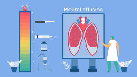 Level of treatments. Pleural effusion is collection of excess fluid between layers of pleura outside lungs. Pulmonology vector illustration about restrictive lung disease. Çizim