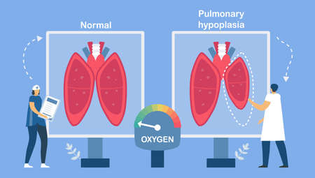 Pulmonary hypoplasia is incomplete  of lungs. It causes low size of alveoli. Pulmonology about restrictive lung disease. Çizim