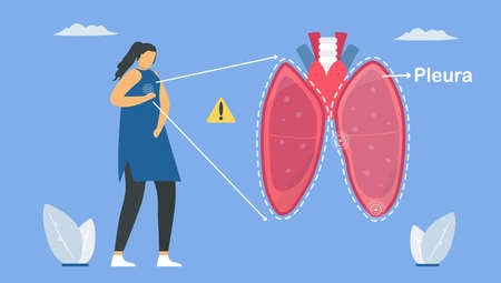 Pleurisy is pleura that separate lungs from chest wall. And it becomes inflamed. Pulmonology vector illustration about restrictive lung disease. Çizim
