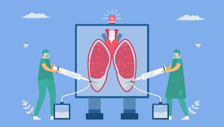 Pleural effusion is collection of excess fluid between layers of pleura outside lungs. Pulmonology vector illustration about restrictive lung disease.