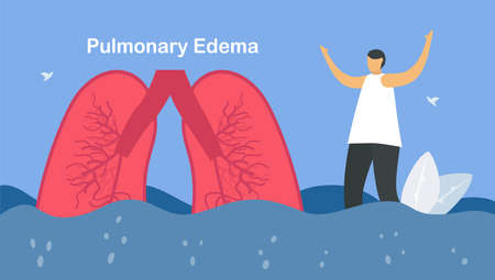 Pulmonary edema is symptom that lungs fill with fluid. Other names is lung congestion, lung water, and pulmonary congestion. ฺBody struggles to get enough oxygen until shortness of breath.