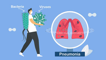 Pneumonia is infection that inflames air sacs in one or both lungs. This symptom is caused by bacteria and viruses. Pulmonology vector illustration about restrictive lung disease.