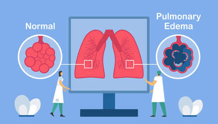 Pulmonary edema is shown good and bad alveoli. Other names is lung congestion, lung water, and pulmonary congestion. ฺBody struggles to get enough oxygen until shortness of breath.