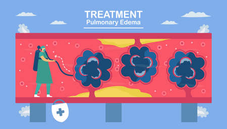 Pulmonary edema is symptom that lungs fill with fluid. Treatment and diagnostic. Body struggles to get enough oxygen until shortness of breath.