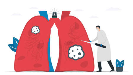 Doctor incises dead cancer to treatent patient. Knowledge about Lung cancer awareness month, November. Flat vector illustration isolated on white background.
