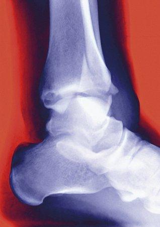 distal: Fractura del tobillo, rayos X