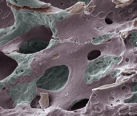 cancellous: Osteoporotic bone, SEM