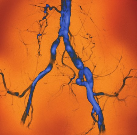 Narrowed abdominal arteries, angiogram