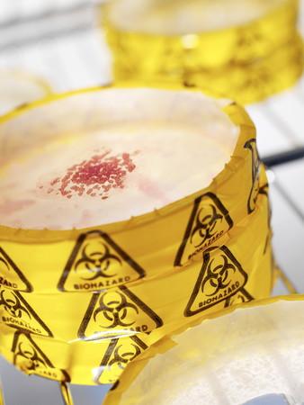 petri: Biohazard warning