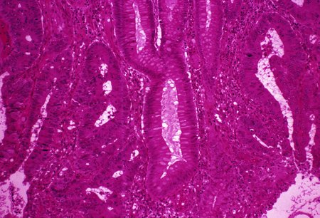 sectioned: Colon cancer