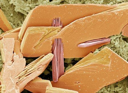 proteomics: Albumen crystals, SEM LANG_EVOIMAGES
