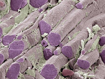 striated: Skeletal muscle fibres, SEM