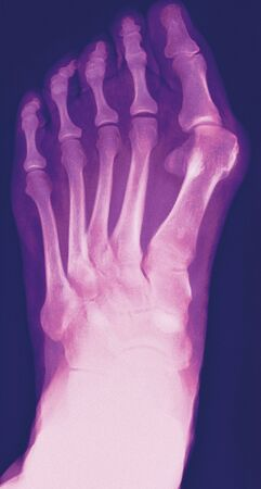 Bunion, X-ray LANG_EVOIMAGES