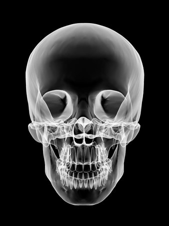 Human skull, X-ray artwork